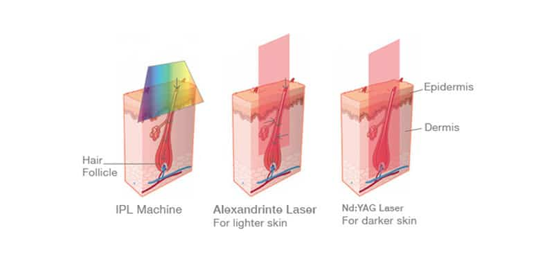 laser hair removal using different machines