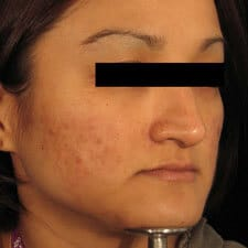 Acne treatment with Dermaroller