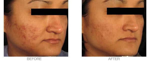 Acne Scarring Treatment with Dermaroller