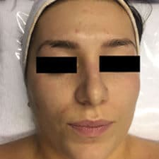 Acne treatment with facial