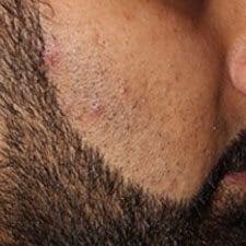 Men Laser Hair Removal Treatment