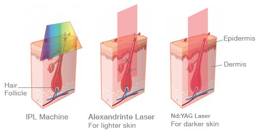 Laser Hair Removal Machine Vs IPL Hair Removal Machine