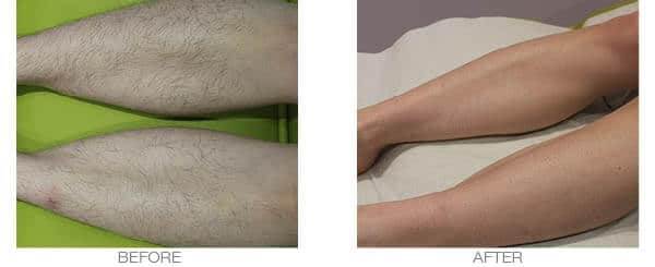 Laser Hair Removal Legs Treatment