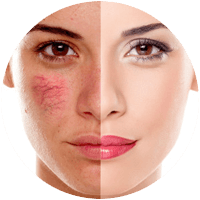 Laser Treatments - Laser Red Vein Removal