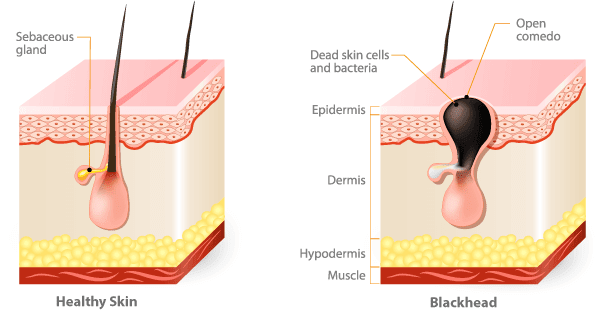 Blackheads Formation