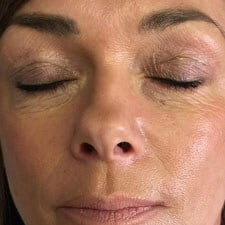 Skin Tightening anti-ageing facial treatment