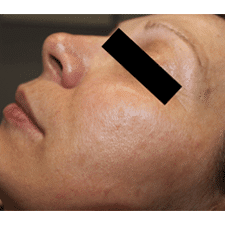 laser skin tightening treatment