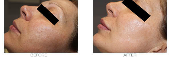laser skin tightening treatment - before and after picture