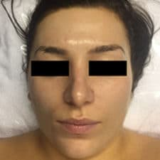 Bespoke Oily Skin Treatment Facials