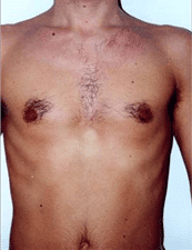 Men Laser hair removal chest treatment