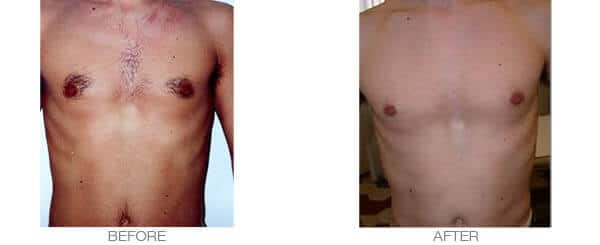 Men laser hair removal results - chest treatment
