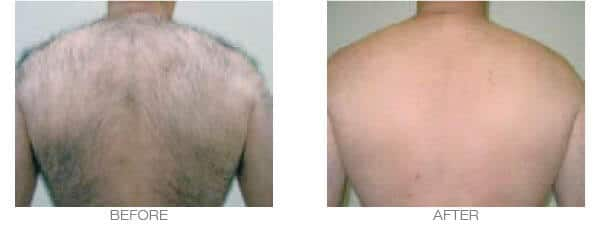 Men laser hair removal results - full back treatment