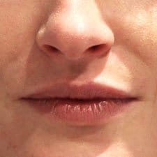 Lip Fillers Treatment for lip volume loss