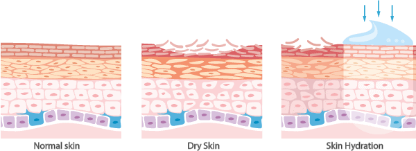 Dry Skin Compared to normal Skin