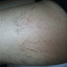 Laser Thread Vein Removal Before & After Case 3