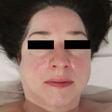 Sensitive skin facial treatment