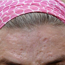 acne scars Dermaroller treatment