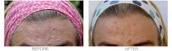 Acne Scars Treatment with Dermaroller
