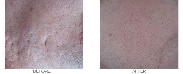 scars treatment - before and after picture