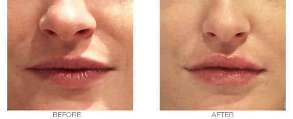 Thin lips dermal lip fillers treatment - before and after picture