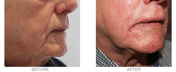 Cheeks Volume loss fillers treatment - before and after picture