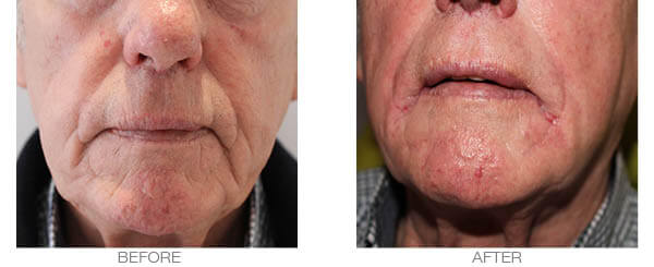 Skin Volume loss fillers treatment - before and after picture