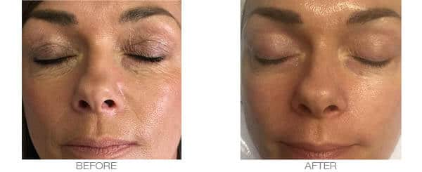Wrinkles Facial Treatment - Before and After Picture