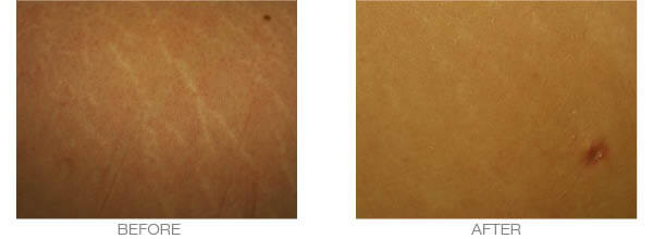 stretch marks dermaroller treatment - before and after picture